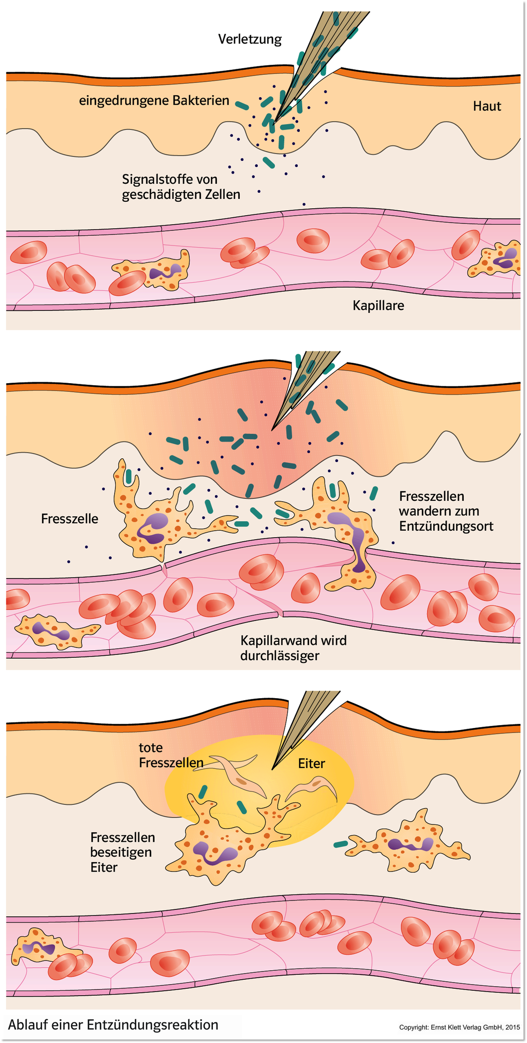 Tendonitis Tendinosis Difference Matters Recovery in addition Full further Bifidobacterium Bifidum Rosell71 Reduces Colds In New Study furthermore Stock Illustration Phagocytosis Human Immune System Vector Image79205517 moreover 384. on immune response